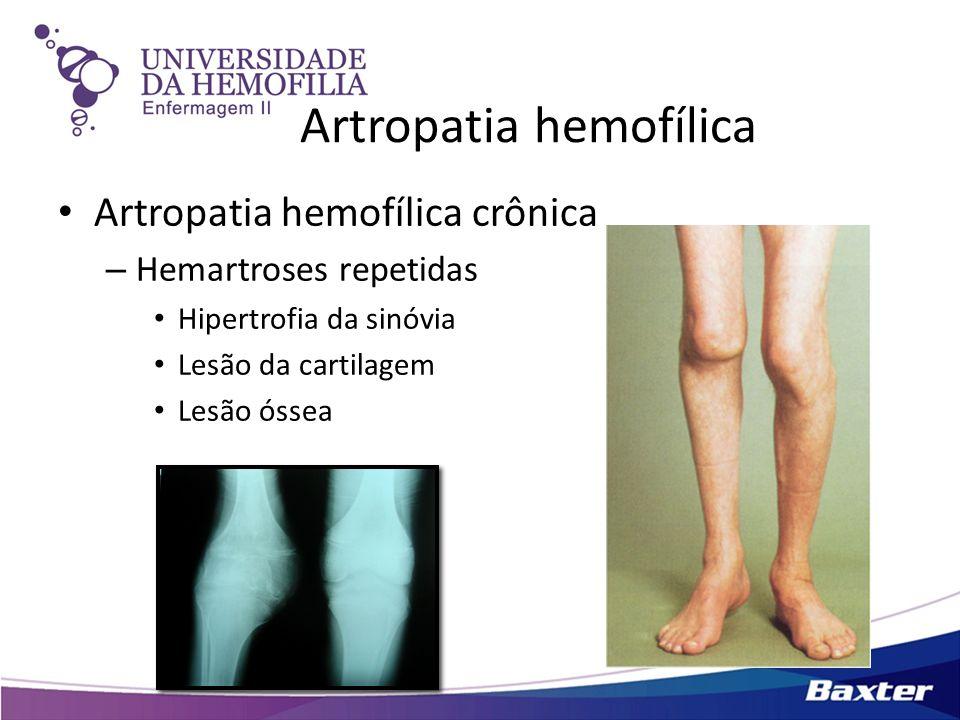 Artropatia hemofílica Artropatia hemofílica crônica – Hemartroses repetidas Hipertrofia da sinóvia Lesão da cartilagem Lesão óssea