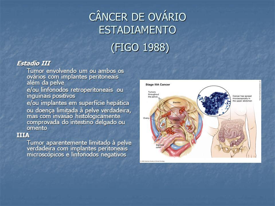 CÂNCER DE OVÁRIO ESTADIAMENTO (FIGO 1988) Estadio III Tumor envolvendo um ou ambos os ovários com implantes peritoneais além da pelve e/ou linfonodos