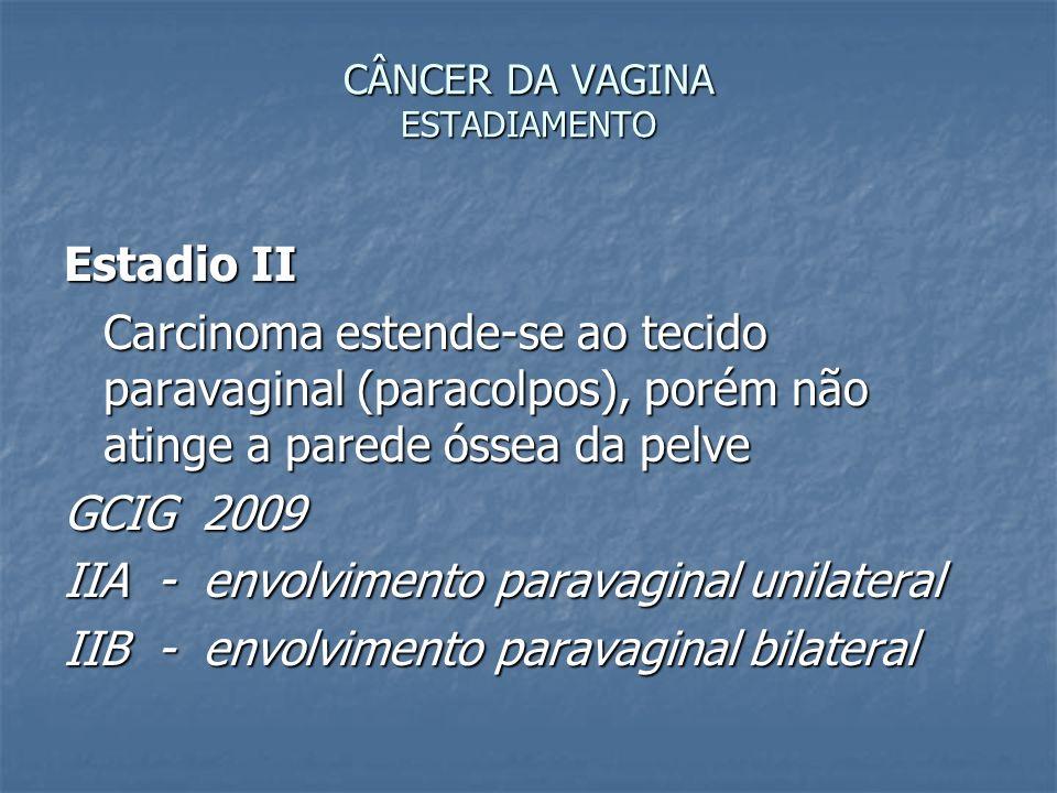 CÂNCER DA VAGINA ESTADIAMENTO Estadio II Carcinoma estende-se ao tecido paravaginal (paracolpos), porém não atinge a parede óssea da pelve GCIG 2009 I