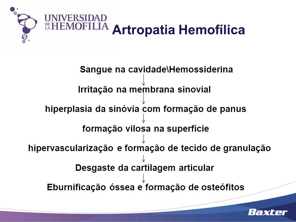Sangue na cavidade\Hemossiderina Irritação na membrana sinovial hiperplasia da sinóvia com formação de panus formação vilosa na superfície hipervascul