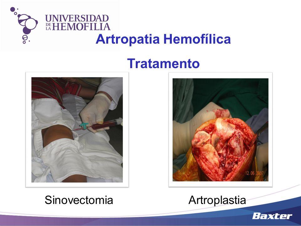 SinovectomiaArtroplastia Artropatia Hemofílica Tratamento