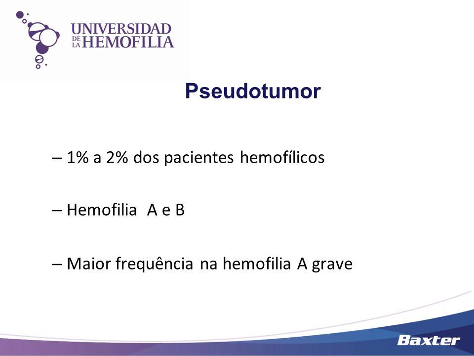 Pseudotumor – 1% a 2% dos pacientes hemofílicos – Hemofilia A e B – Maior frequência na hemofilia A grave