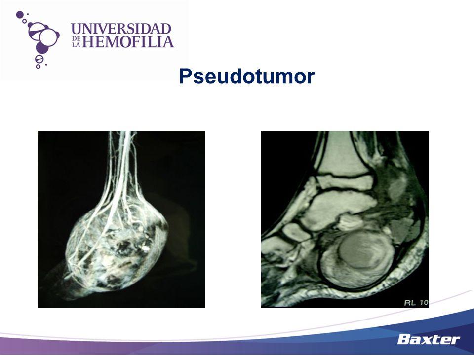 Artropatia Hemofílica