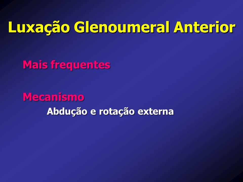 Luxação Glenoumeral Anterior Mais frequentes Mecanismo Abdução e rotação externa Mecanismo Abdução e rotação externa