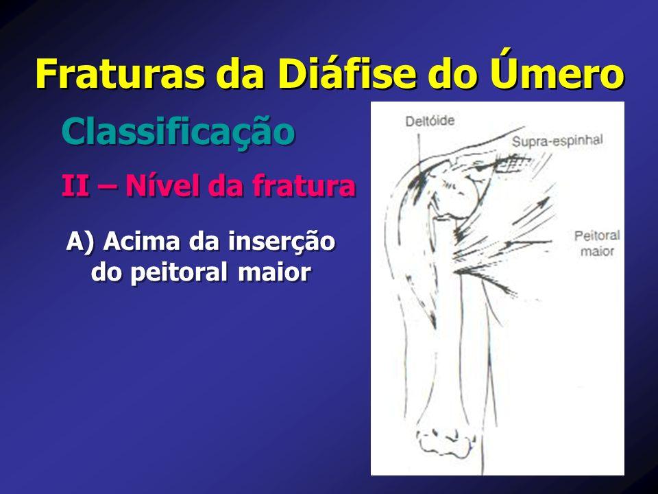 Fraturas da Diáfise do Úmero II – Nível da fratura Classificação A) A) Acima da inserção do peitoral maior