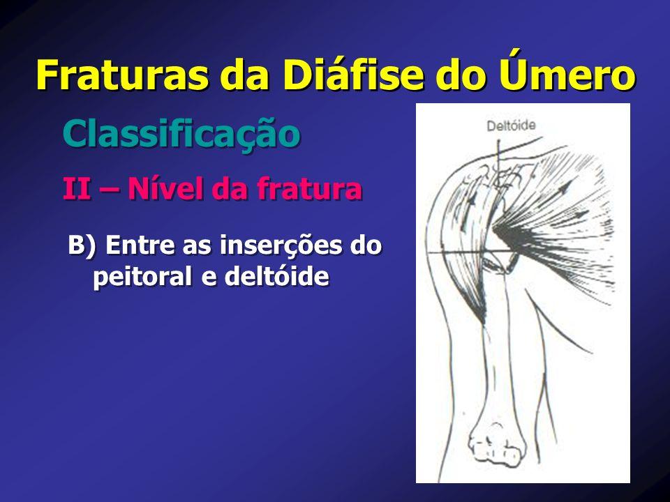 B) Entre as inserções do peitoral e deltóide Fraturas da Diáfise do Úmero II – Nível da fratura Classificação