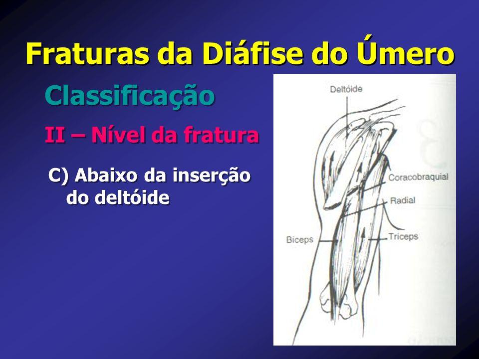 Fraturas da Diáfise do Úmero II – Nível da fratura Classificação C) Abaixo da inserção do deltóide