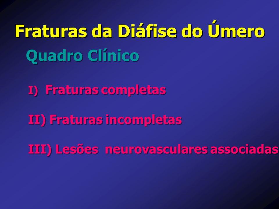 Fraturas da Diáfise do Úmero Quadro Clínico I) I) Fraturas completas II) II) Fraturas incompletas III) III) Lesões neurovasculares associadas I) I) Fr