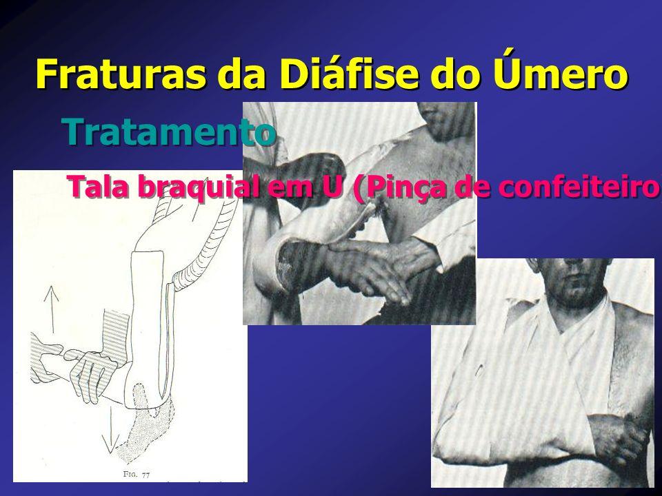 Fraturas da Diáfise do Úmero Tratamento Tala braquial em U (Pinça de confeiteiro)