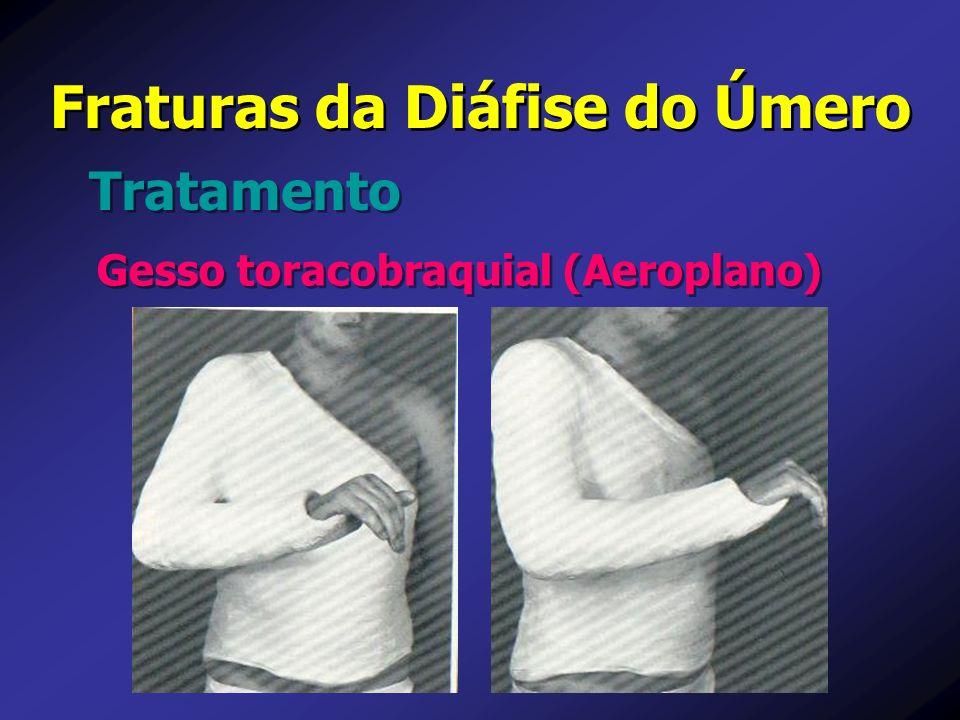 Fraturas da Diáfise do Úmero Tratamento Gesso toracobraquial (Aeroplano)