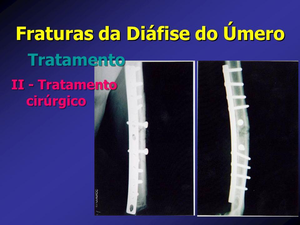 Fraturas da Diáfise do Úmero Tratamento II - Tratamento cirúrgico