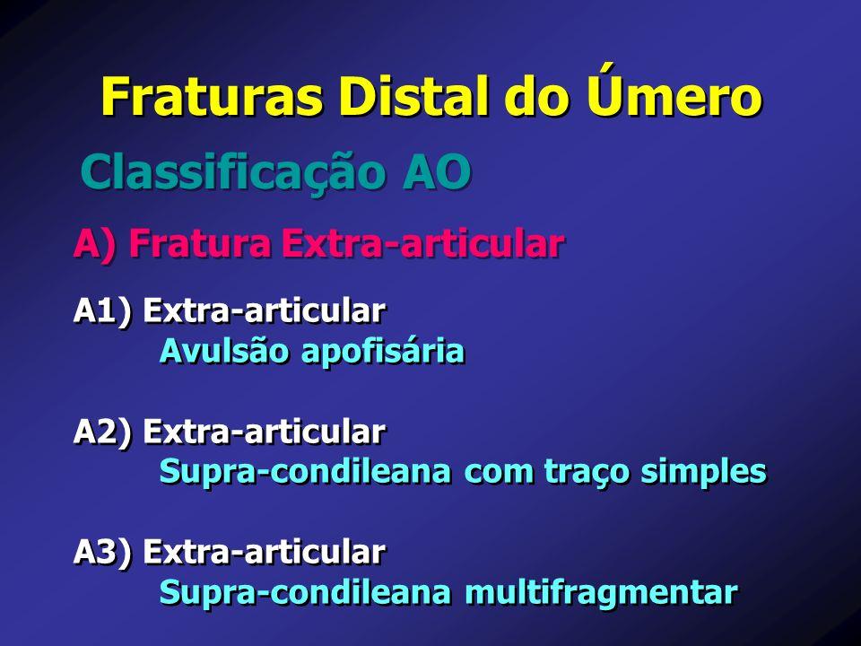A) Fratura Extra-articular Classificação AO Fraturas Distal do Úmero A1) Extra-articular Avulsão apofisária A2) Extra-articular Supra-condileana com t