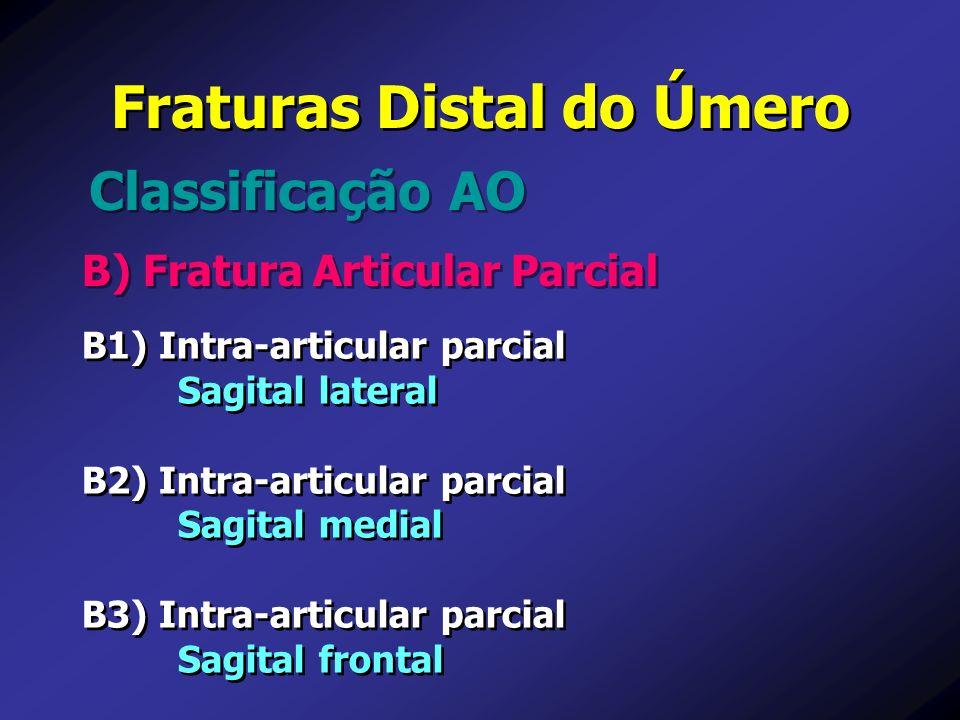 B) Fratura Articular Parcial Classificação AO Fraturas Distal do Úmero B1) Intra-articular parcial Sagital lateral B2) Intra-articular parcial Sagital