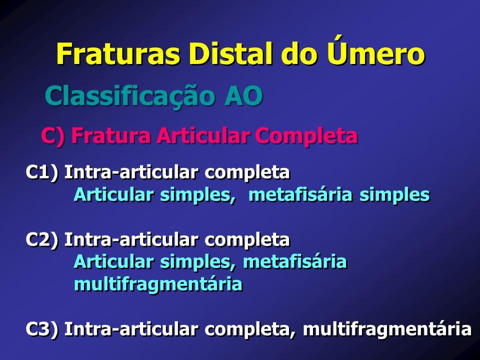 C) Fratura Articular Completa Classificação AO Fraturas Distal do Úmero C1) Intra-articular completa Articular simples, metafisária simples C2) Intra-