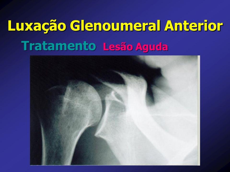 Luxação Glenoumeral Anterior Tratamento Lesão Aguda