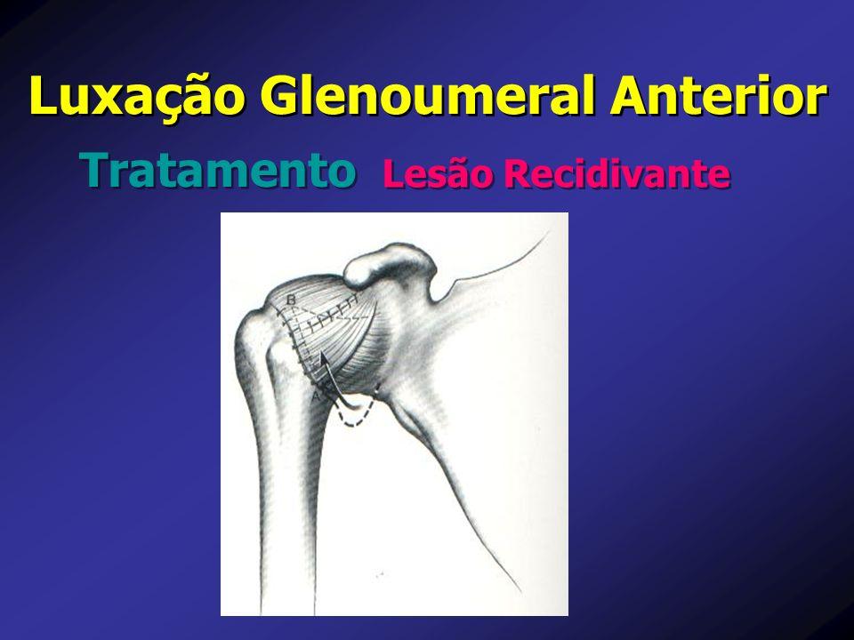 Lesão Recidivante Luxação Glenoumeral Anterior Tratamento