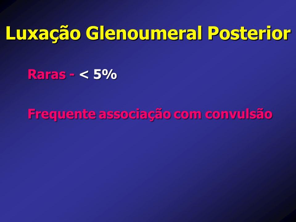 Luxação Glenoumeral Posterior Raras - < 5% Frequente associação com convulsão