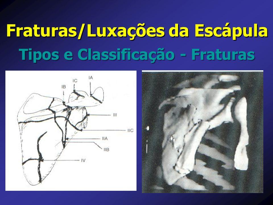 Fraturas/Luxações da Escápula Tipos e Classificação - Fraturas