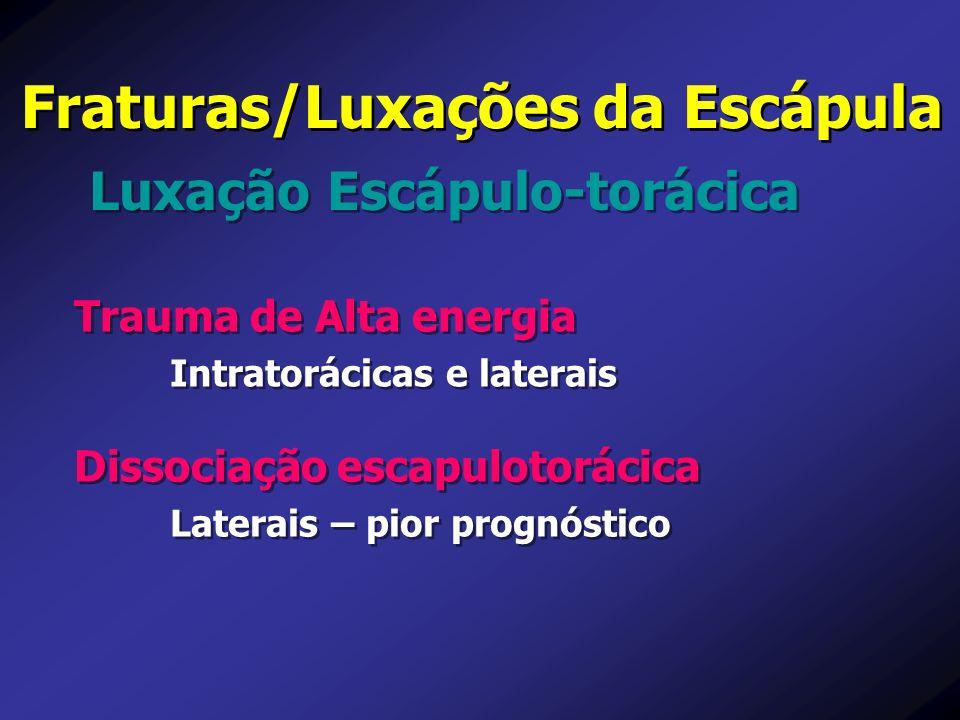 Luxação Escápulo-torácica Fraturas/Luxações da Escápula Trauma de Alta energia Intratorácicas e laterais Trauma de Alta energia Intratorácicas e later