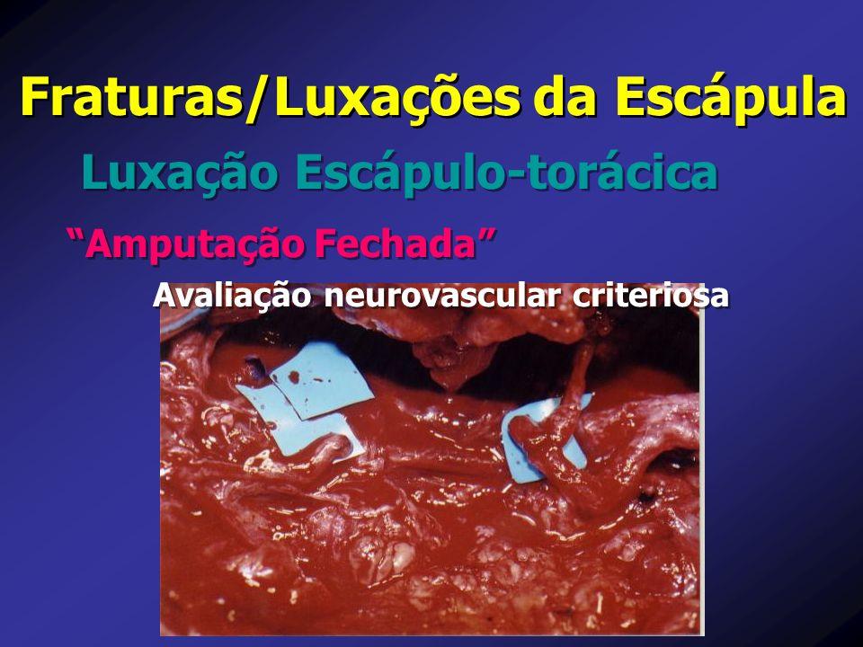 Luxação Escápulo-torácica Fraturas/Luxações da Escápula Amputação Fechada Avaliação neurovascular criteriosa Amputação Fechada Avaliação neurovascular