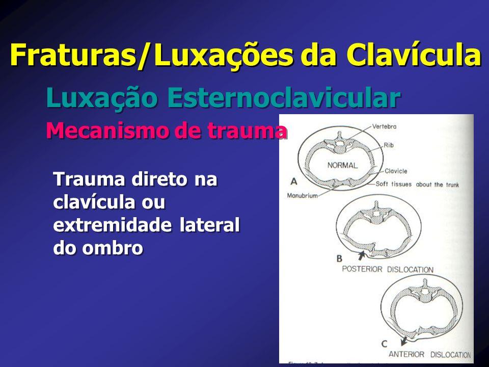 Luxação Esternoclavicular Fraturas/Luxações da Clavícula Mecanismo de trauma Trauma direto na clavícula ou extremidade lateral do ombro