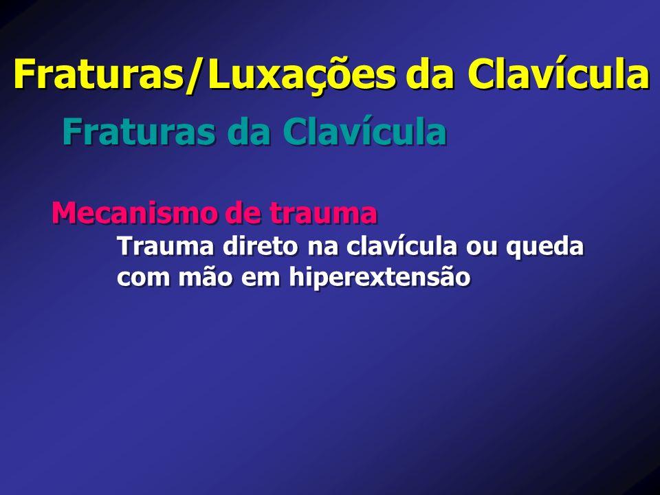 Fraturas da Clavícula Fraturas/Luxações da Clavícula Mecanismo de trauma Trauma direto na clavícula ou queda com mão em hiperextensão