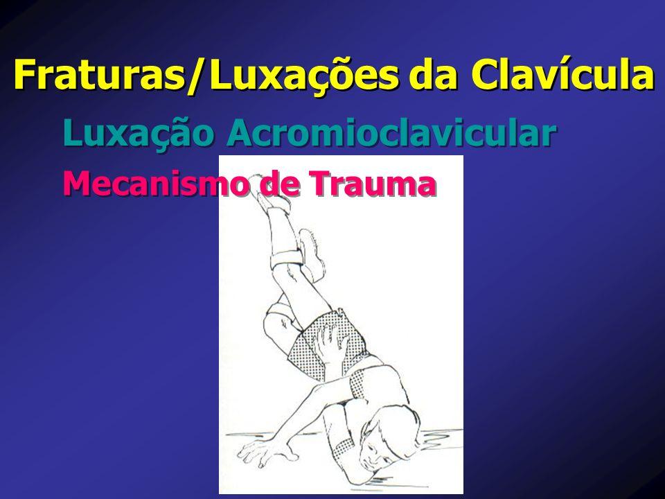 Luxação Acromioclavicular Fraturas/Luxações da Clavícula Mecanismo de Trauma