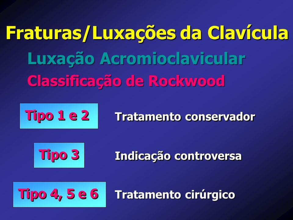 Luxação Acromioclavicular Fraturas/Luxações da Clavícula Classificação de Rockwood Tratamento cirúrgico Tratamento conservador Indicação controversa T