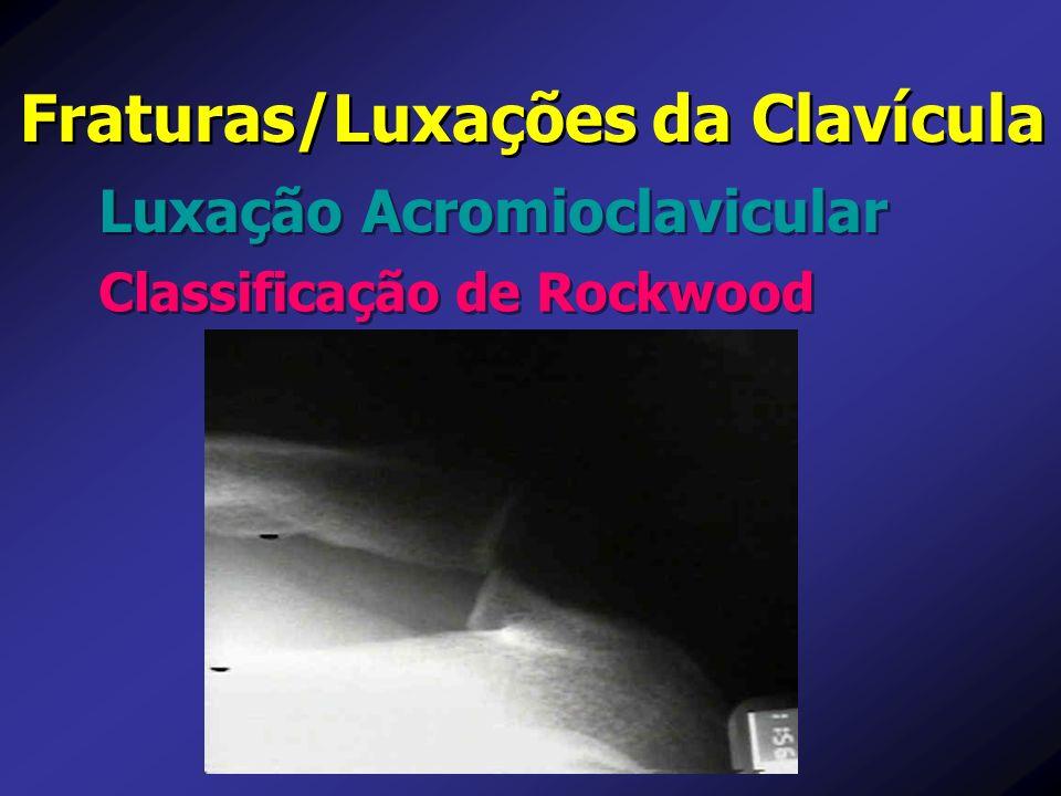 Luxação Acromioclavicular Fraturas/Luxações da Clavícula Classificação de Rockwood