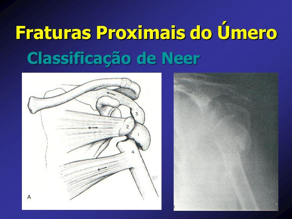 Classificação de Neer Fraturas Proximais do Úmero