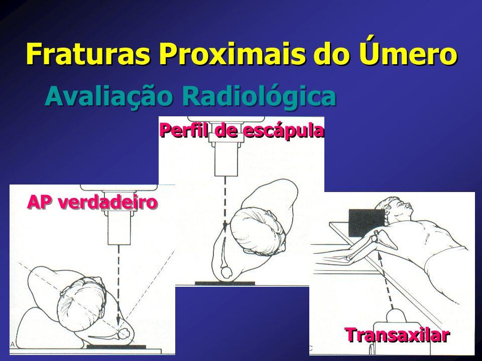 Avaliação Radiológica Fraturas Proximais do Úmero Transaxilar Perfil de escápula AP verdadeiro