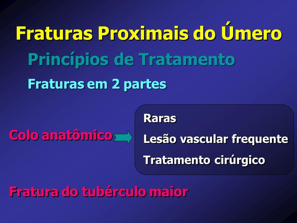 Princípios de Tratamento Fraturas Proximais do Úmero Fraturas em 2 partes Raras Lesão vascular frequente Tratamento cirúrgico Raras Lesão vascular fre