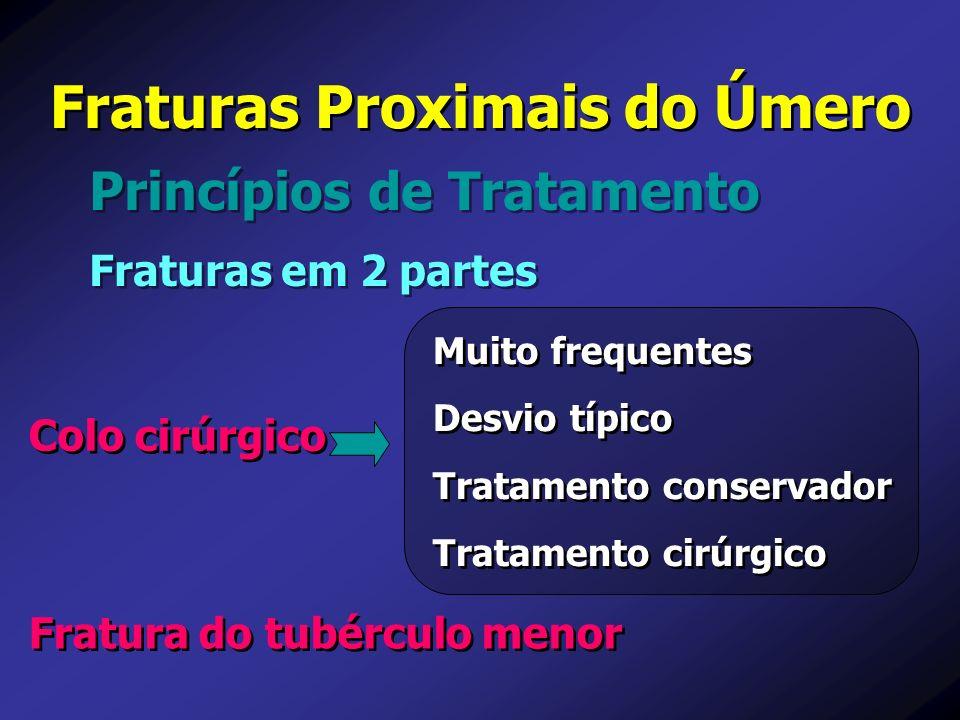 Princípios de Tratamento Fraturas Proximais do Úmero Fraturas em 2 partes Muito frequentes Desvio típico Tratamento conservador Tratamento cirúrgico M