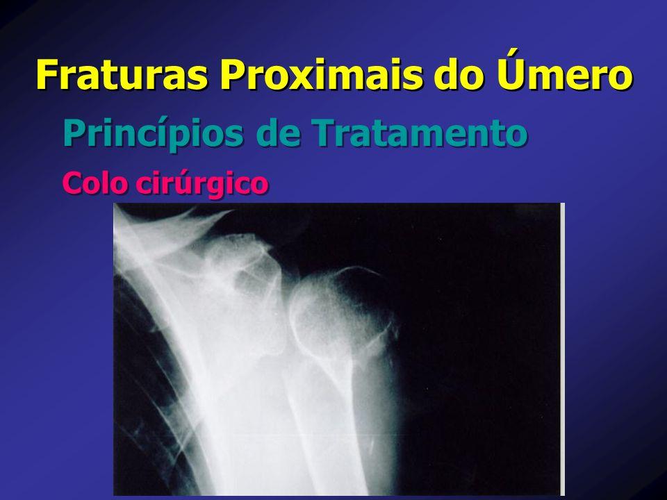 Princípios de Tratamento Fraturas Proximais do Úmero Colo cirúrgico
