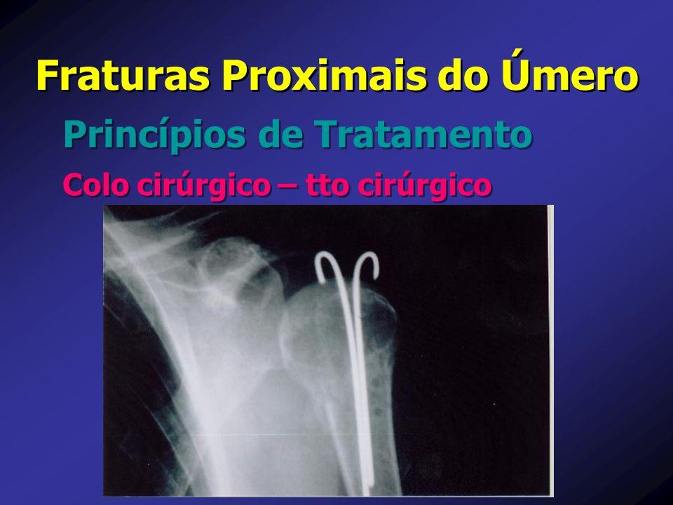 Princípios de Tratamento Fraturas Proximais do Úmero Colo cirúrgico – tto cirúrgico
