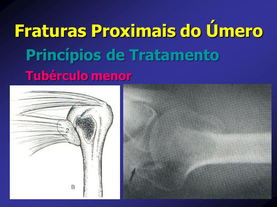 Princípios de Tratamento Fraturas Proximais do Úmero Tubérculo menor