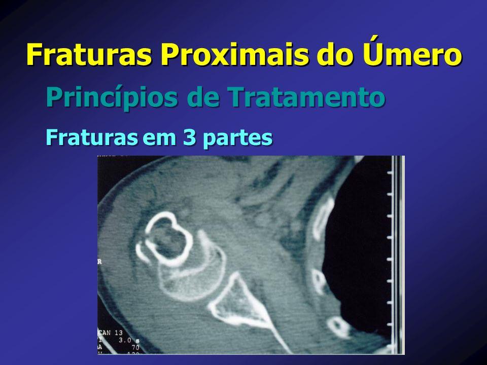 Princípios de Tratamento Fraturas Proximais do Úmero Fraturas em 3 partes