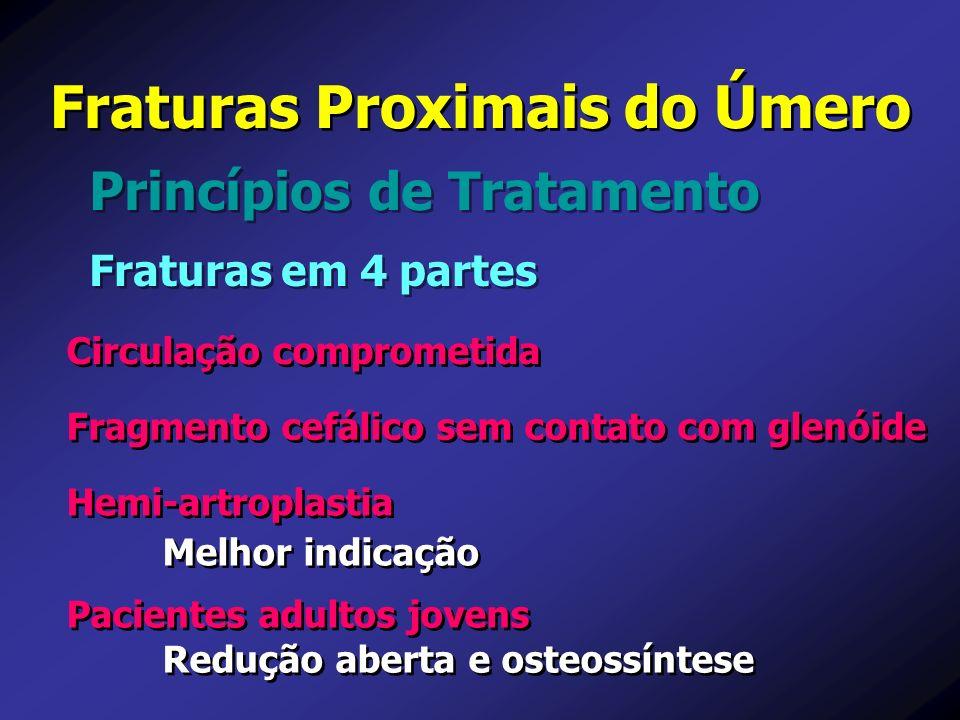 Princípios de Tratamento Fraturas Proximais do Úmero Fraturas em 4 partes Circulação comprometida Pacientes adultos jovens Redução aberta e osteossínt