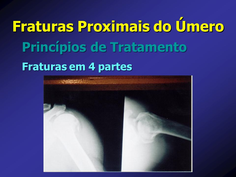 Princípios de Tratamento Fraturas Proximais do Úmero Fraturas em 4 partes