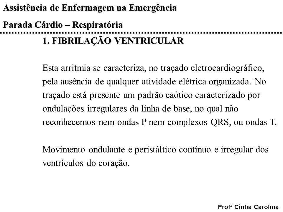 Assistência de Enfermagem na Emergência Parada Cárdio – Respiratória Profª Cíntia Carolina 1. FIBRILAÇÃO VENTRICULAR Esta arritmia se caracteriza, no