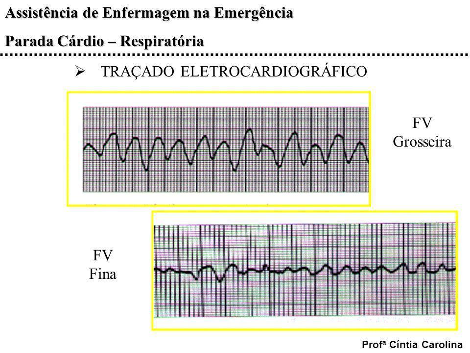 Assistência de Enfermagem na Emergência Parada Cárdio – Respiratória Profª Cíntia Carolina TRAÇADO ELETROCARDIOGRÁFICO FV Grosseira FV Fina