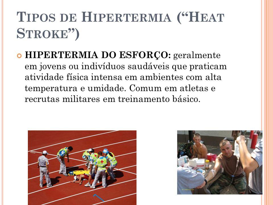 T IPOS DE H IPERTERMIA (H EAT S TROKE ) HIPERTERMIA DO ESFORÇO: geralmente em jovens ou indivíduos saudáveis que praticam atividade física intensa em