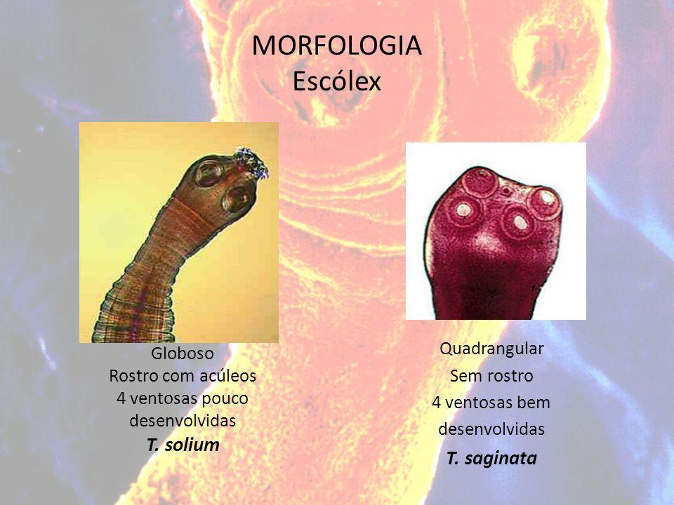 MORFOLOGIA Escólex Globoso Rostro com acúleos 4 ventosas pouco desenvolvidas T. solium Quadrangular Sem rostro 4 ventosas bem desenvolvidas T. saginat