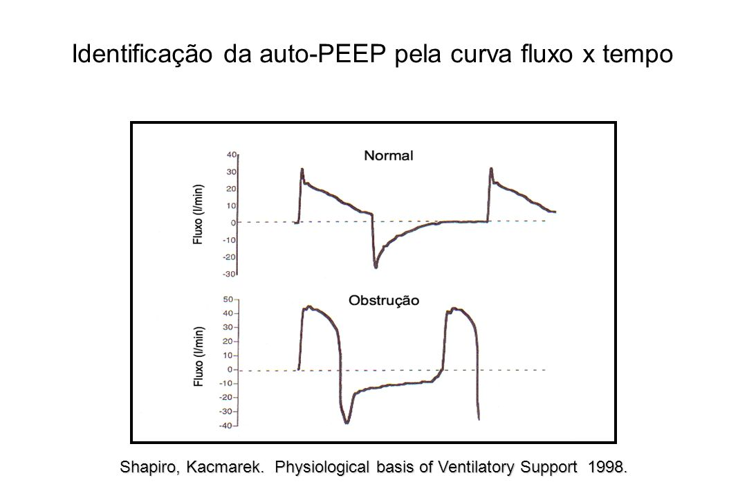 Shapiro, Kacmarek. Physiological basis of Ventilatory Support 1998. Identificação da auto-PEEP pela curva fluxo x tempo