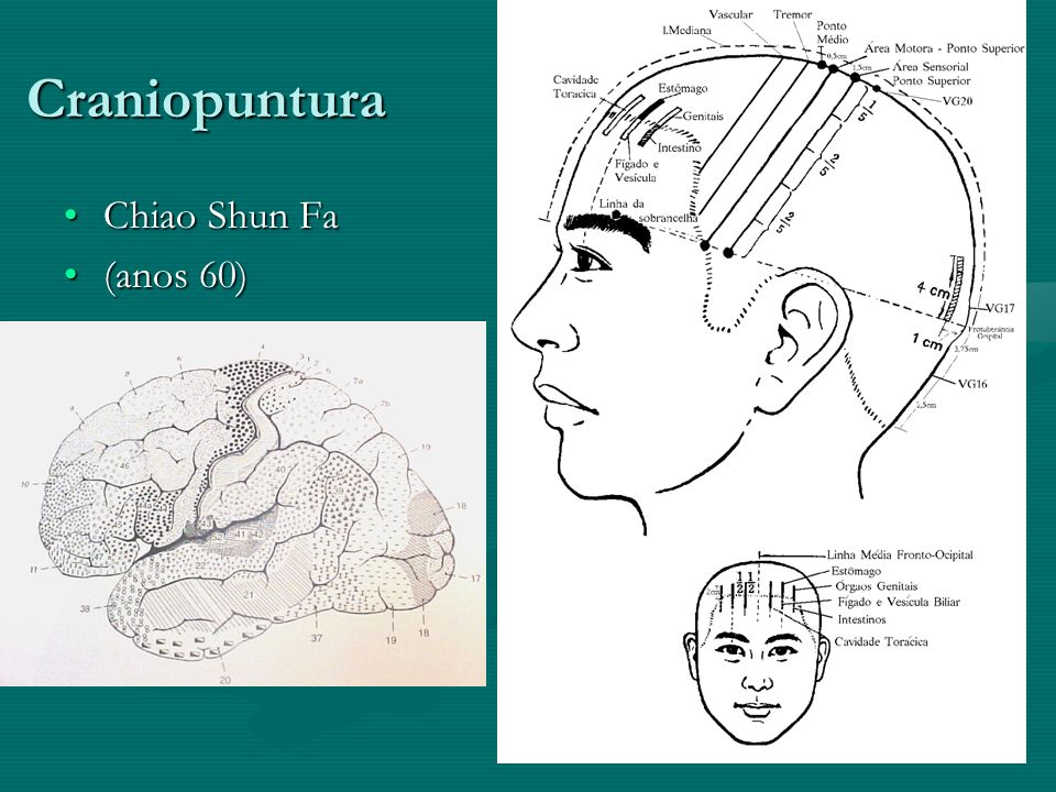 Craniopuntura Chiao Shun FaChiao Shun Fa (anos 60)(anos 60)
