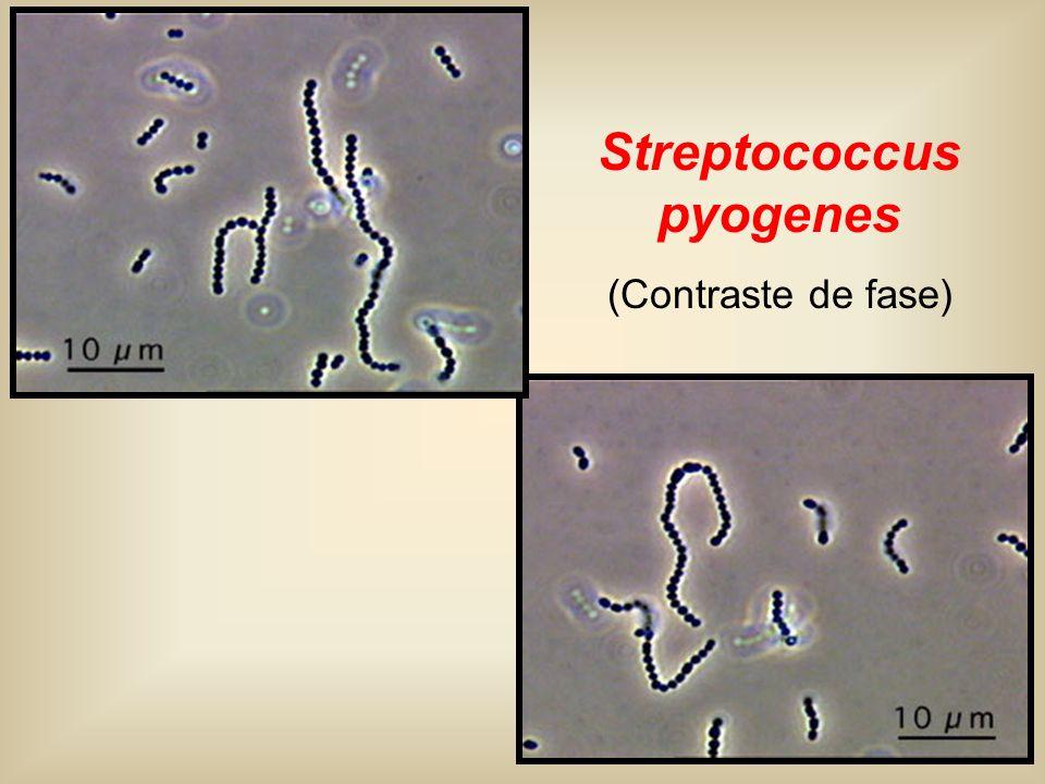 Bile Esculin Agar POS Enterococcus Group D Streptococcus Bile Esculin Agar NEG