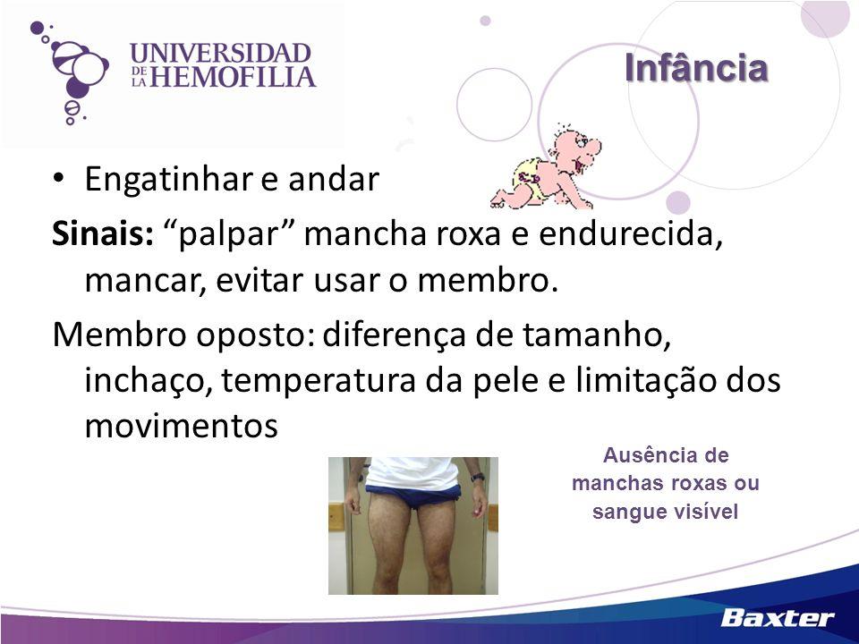 Infância Infância Engatinhar e andar Sinais: palpar mancha roxa e endurecida, mancar, evitar usar o membro. Membro oposto: diferença de tamanho, incha