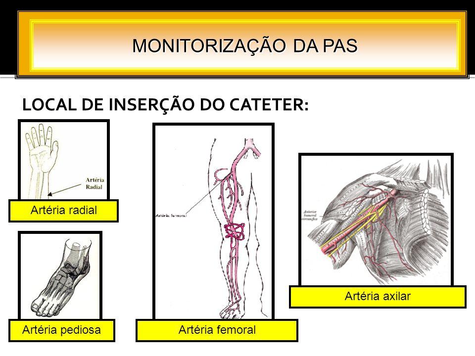 LOCAL DE INSERÇÃO DO CATETER: MONITORIZAÇÃO DA PAS Artéria radial Artéria femoral Artéria axilar Artéria pediosa