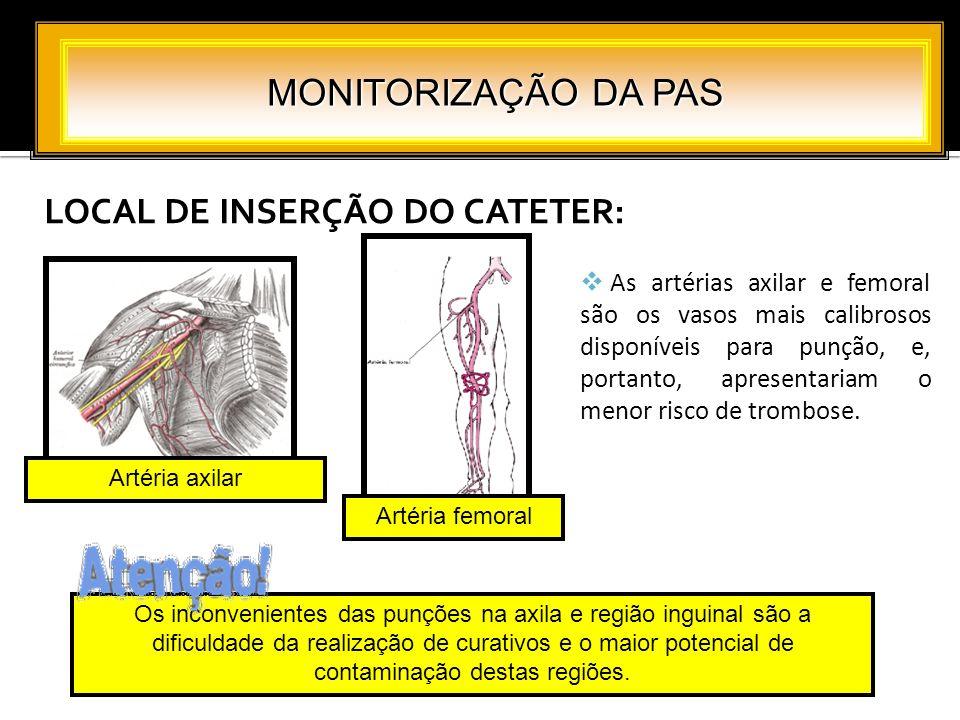 LOCAL DE INSERÇÃO DO CATETER: MONITORIZAÇÃO DA PAS As artérias axilar e femoral são os vasos mais calibrosos disponíveis para punção, e, portanto, apr