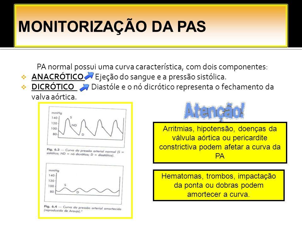 PA normal possui uma curva característica, com dois componentes: ANACRÓTICO Ejeção do sangue e a pressão sistólica. DICRÓTICO Diastóle e o nó dicrótic